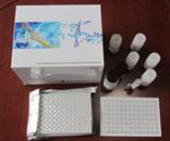 进口人抗软骨抗体(anti-cartilage-Ab)ELISA试剂盒