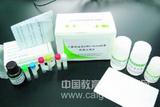 D-二聚体(D-Dimer)测定试剂盒(不含校对品)