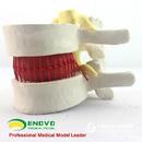 ENOVO颐诺医学人体腰椎间盘突出演示模型 脊神经模型骨科脊柱模型