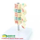 ENOVO颐诺人体骨质疏松症模型 椎间盘人体腰椎模型骨科疼痛科模型