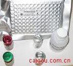 人基质金属蛋白酶2/明胶酶A(MMP-2/Gelatinase A)Elisa试剂盒