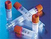 核孔复合体蛋白88抗体