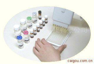 人分泌成分ELISA试剂盒