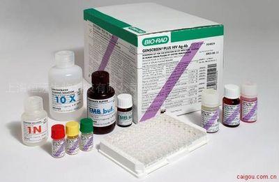 大鼠羟脯氨酸ELISA试剂盒