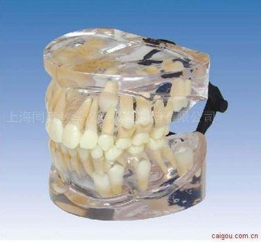 9岁乳恒牙交替模型