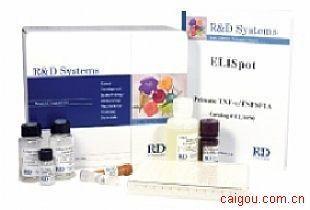 人趋化因子Elisa试剂盒,FK试剂盒