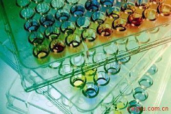 小鼠基质金属蛋白酶抑制因子3Elisa试剂盒,TIMP-3试剂盒