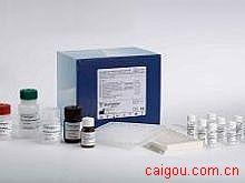人sCD40L,可溶性白细胞分化抗原40配体Elisa试剂盒