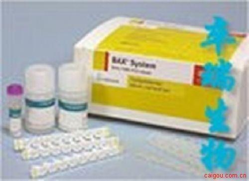 风疹病毒抗体检测试剂盒
