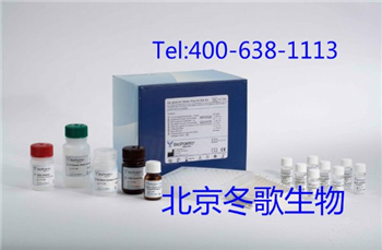 Human骨特异性碱性磷酸酶B,人(ALP-B)elisa试剂盒